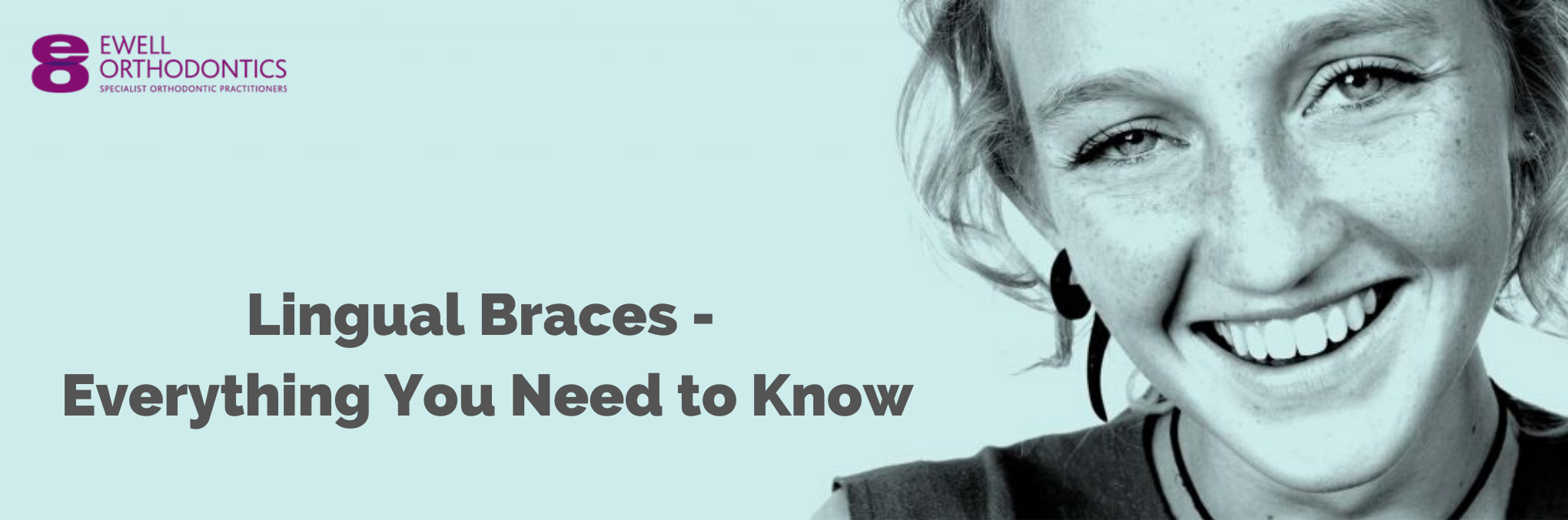 Lingual braces: everything you need to know