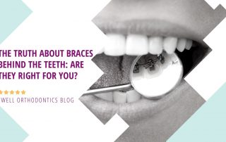 the truth about braces behind the teeth are they right for you