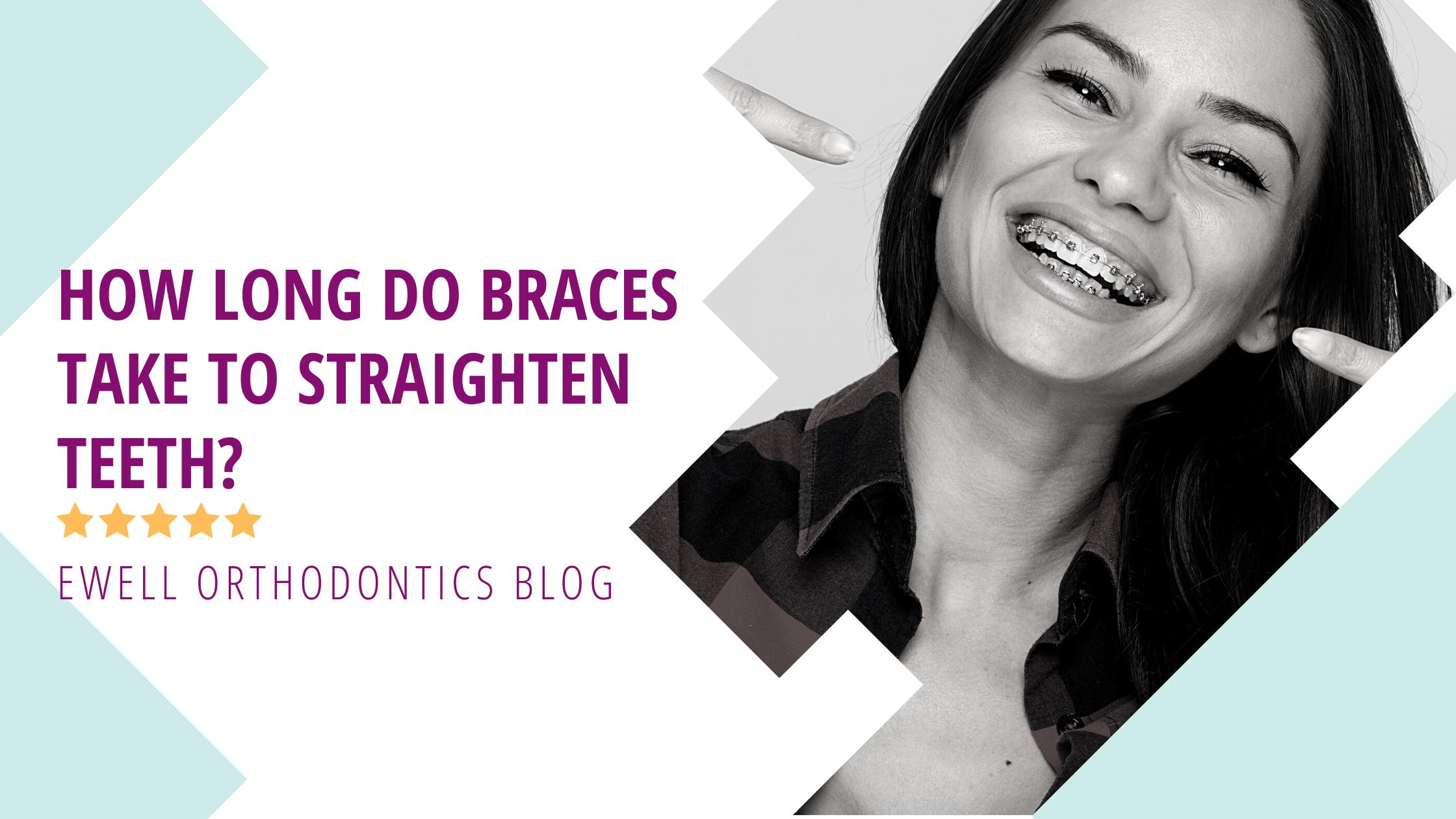 How long do braces take