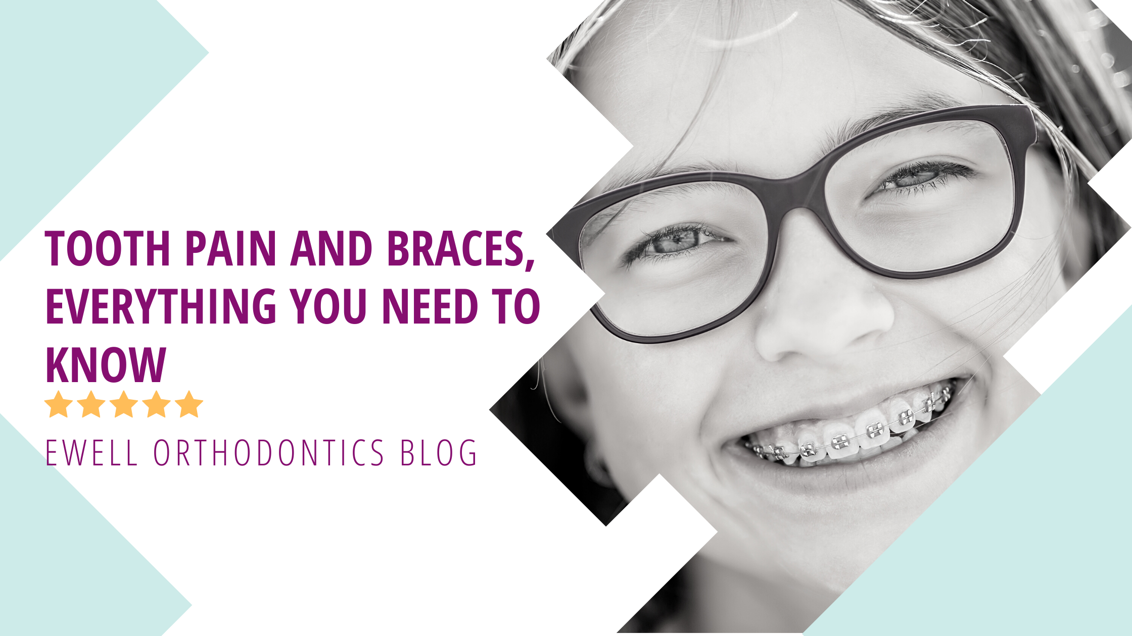 Tooth pain and braces, everything you need to know