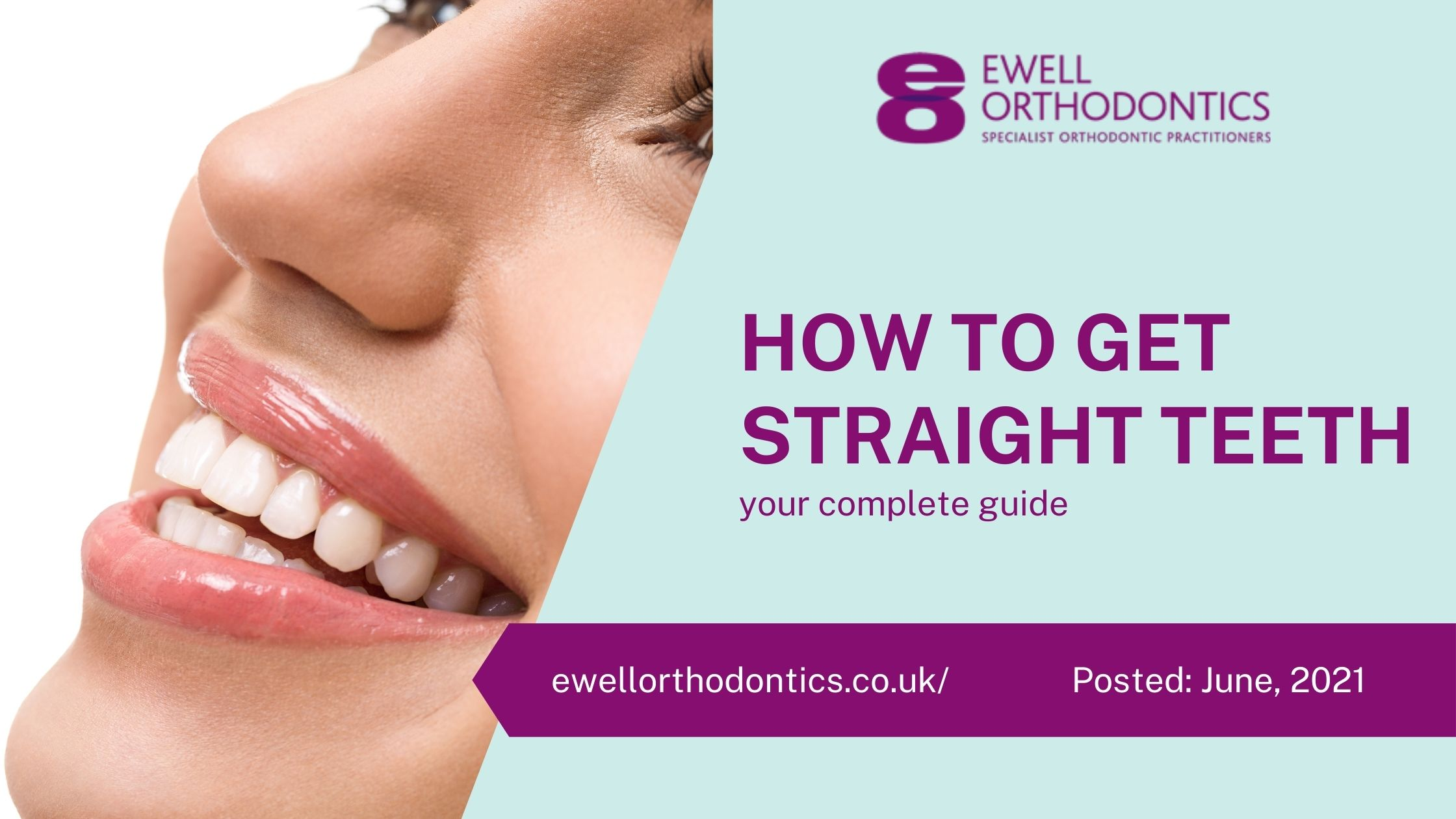 How to get straight teeth