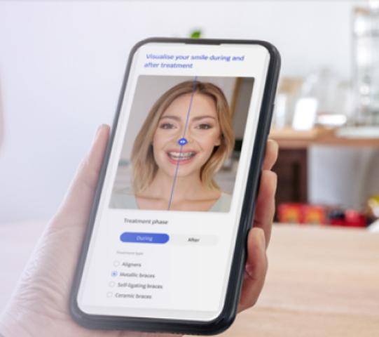 feee virtual orthodontic consultation